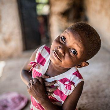 Little Asha was born with cataract in both eyes